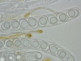 Octospora rubens, ascus with ascospores