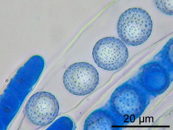 Octospora wrightii, asci with ascospores
